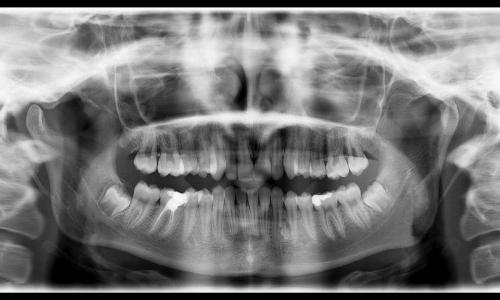 Gömük Diş Cerrahisi